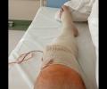 Keď odíde koleno, časť druhá