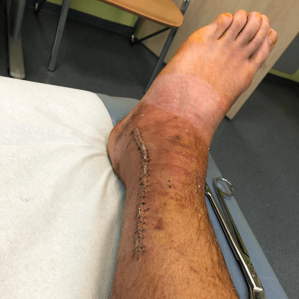 Po operácii členka